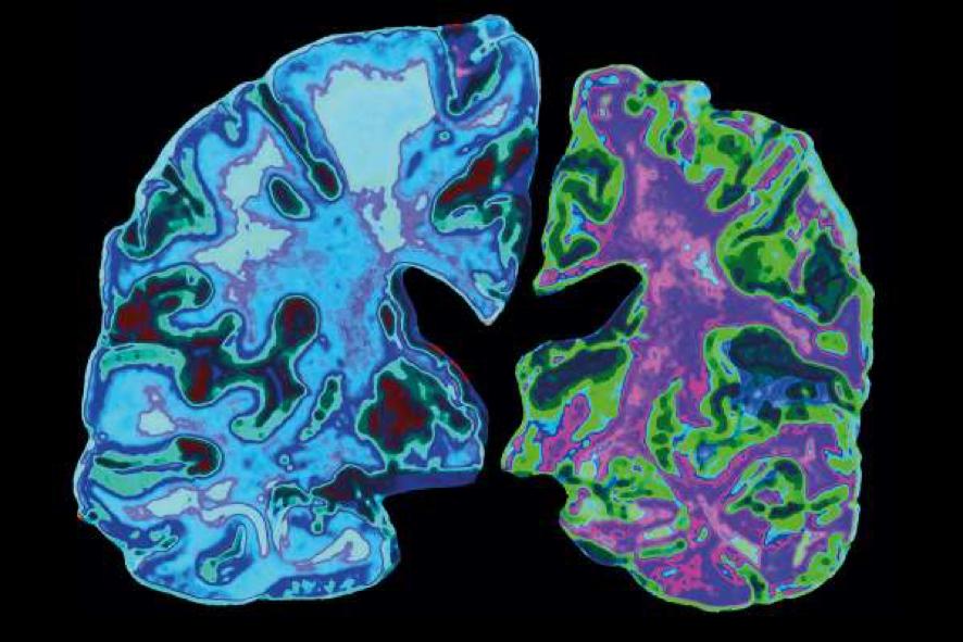 La bacteria Porphyromonas gingivalis Metagenómica y Alzhéimer