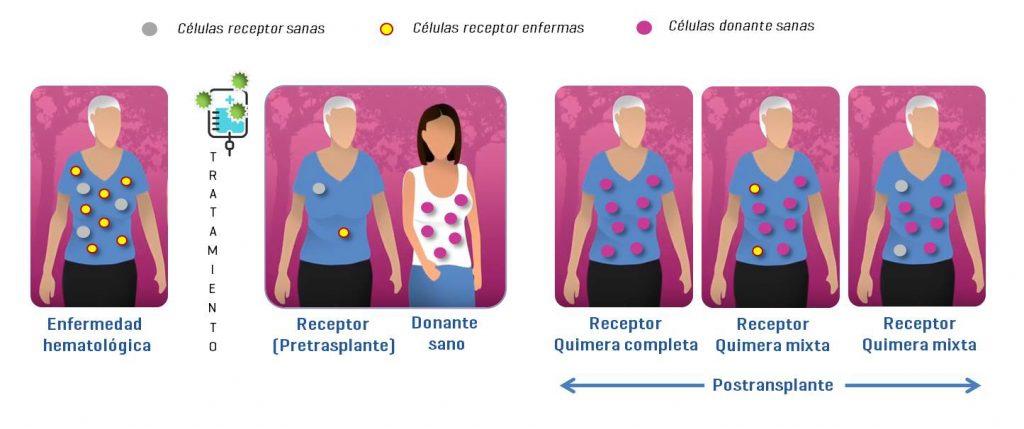Estudios de quimerismo. Trasplante células madre