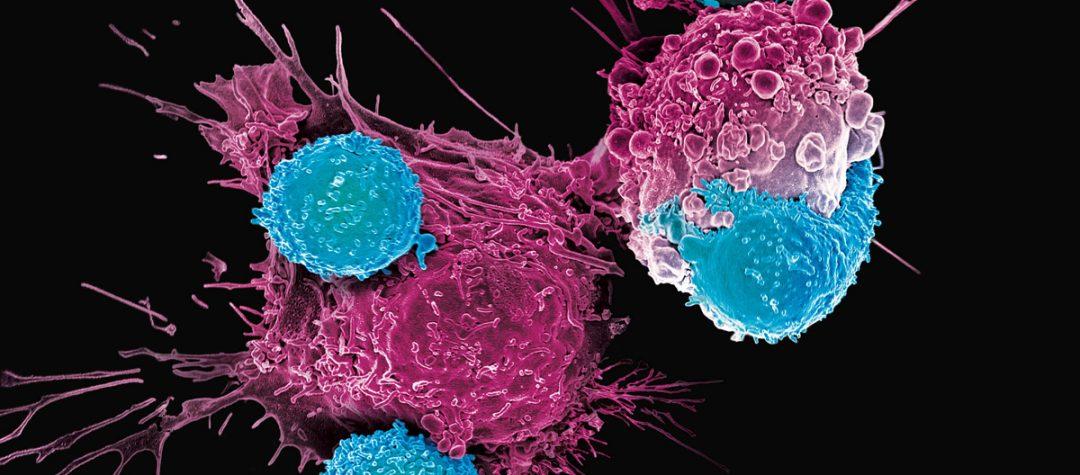 Terapia CAR-T, revolución en el abordaje del cáncer