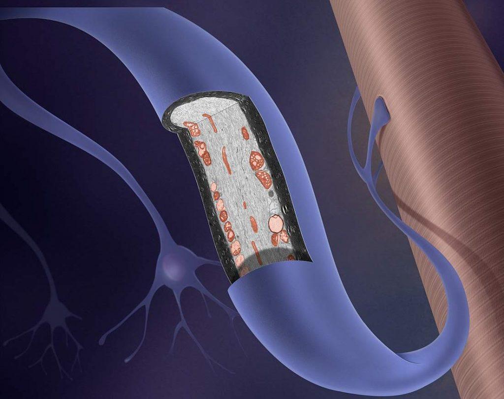 Esclorosis Lateral Amiotrófica (ELA)