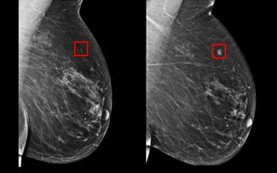 Biopsia líquida: un nuevo test en sangre podrá sustituir a la Mamografía
