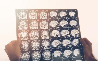 ¿Podemos contra-atacar el Alzheimer y la formación de placas seniles?