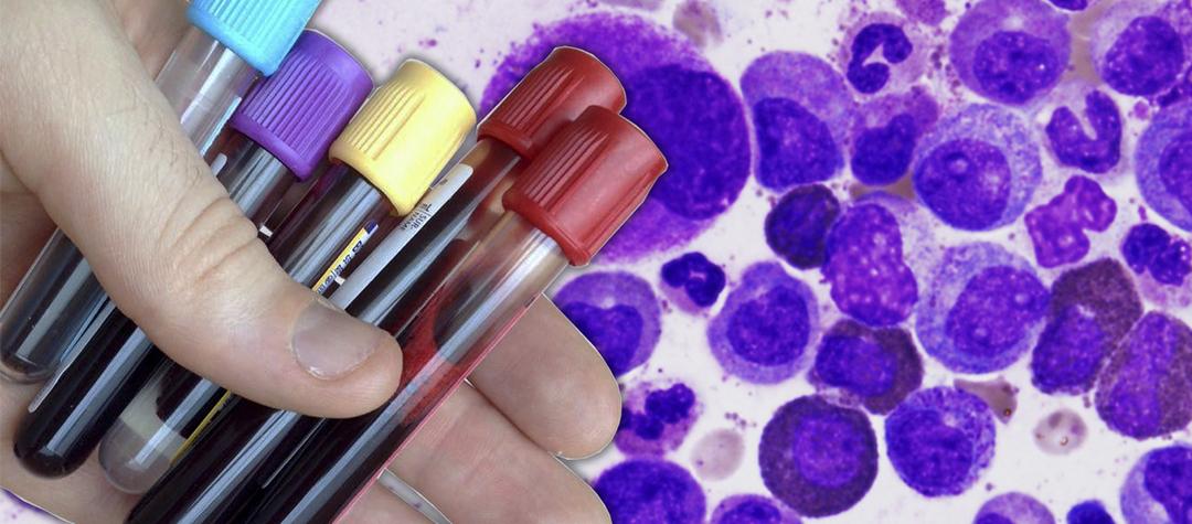 Evolución de Leucemia Mieloide Crónica (LMC) en los 20 años de tratamiento con TKIs