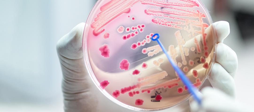 La importancia del equilibrio en nuestra Microbiota Intestinal