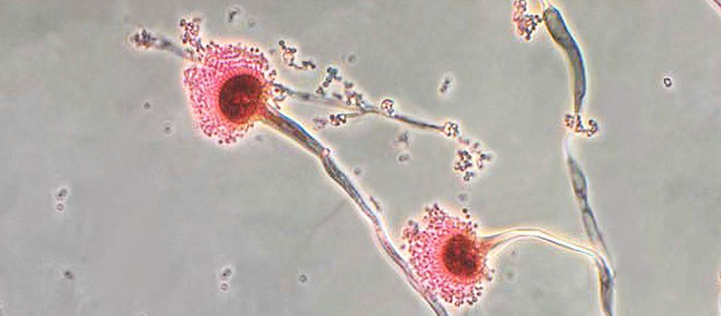 COVID 19 y co-infecciones por hongos