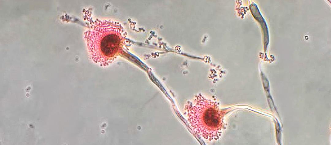COVID-19 y co-infecciones por hongos