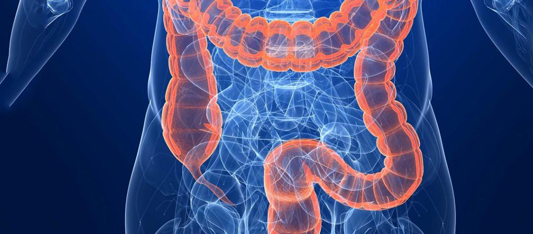 El perfil de expresión de miRNAs en la detección precoz del cáncer colon