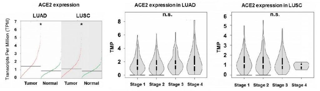 expresión de ACE2 en LUAD y LUSC es más elevada que en tejidos no tumorales en todos los estadios de la enfermedad