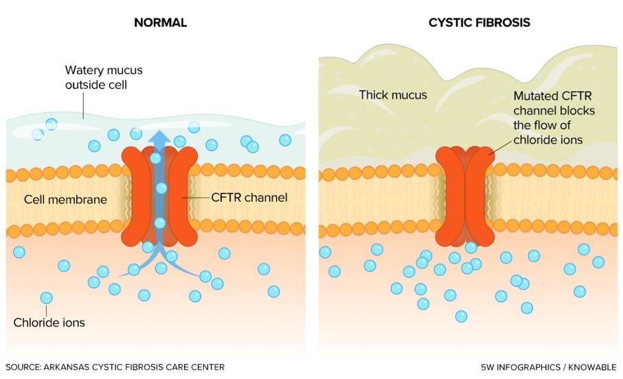 Canal de iones cloruro en membrana de células normales y en células de pacientes con fibrosis quística