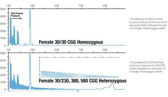 Diferencia en el patrón de picos de mujer homocigota y heterocigota