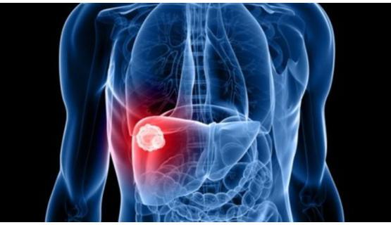 Kits WAKO hepatocarcinoma
