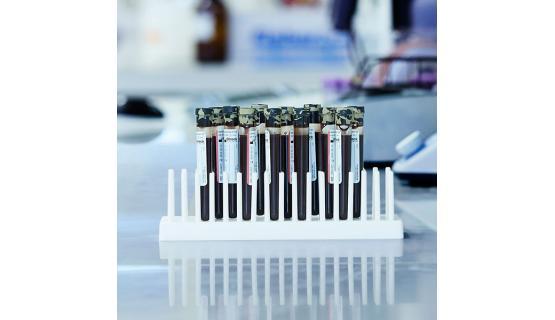Tubos de regocigda de sangre que mantenienen la integridad de las muestras durante los periodos de su transporte y almacenaje