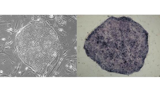 Imagen a microscopio de célula madre