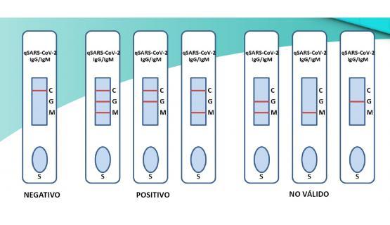 Interpretación Test Rápido COVID 19 qSARS-CoV-2 IgG/IgM