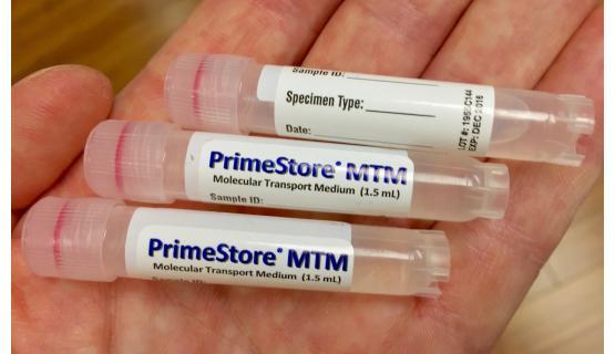Tubos de preservación PrimeStore MTM®