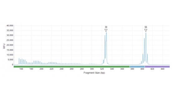 Precisión en el tamaño de la repetición en mujer premutada con alelo normal (30 CGG) y alelo premutado (56CGG)