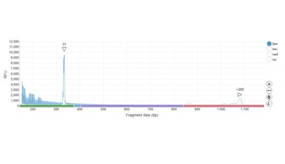 Mujer con interrupciones AGG y mutación completa como indica la pérdida de altura en picos de repeticiones CGG del perfil